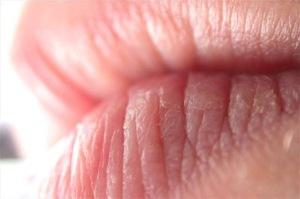Chapped-lips-2